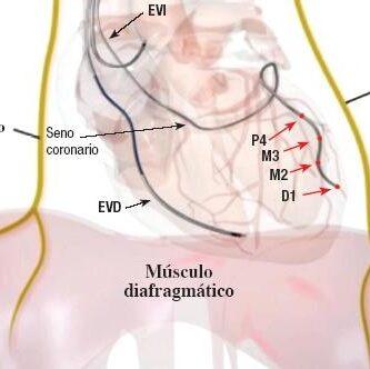 Nervio Frénico