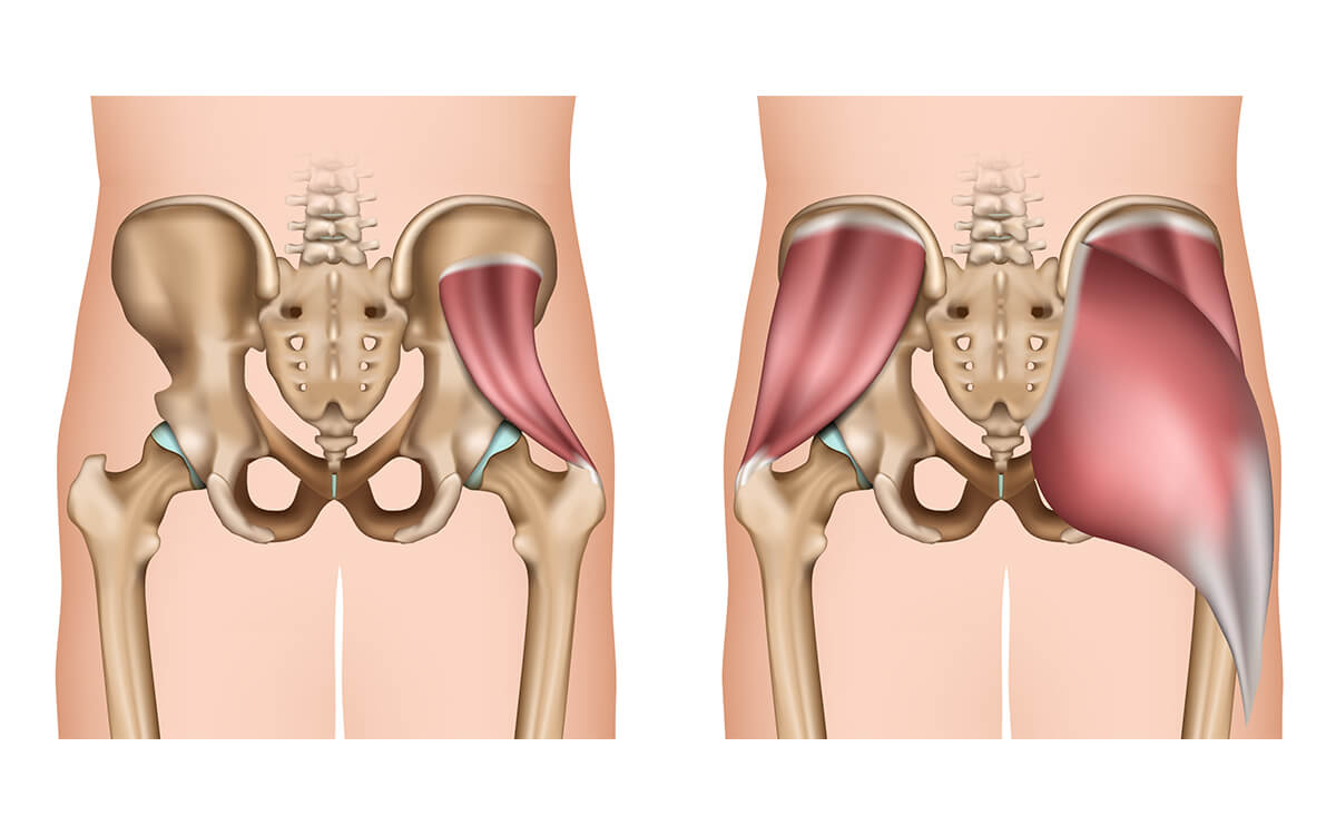 músculo piriforme