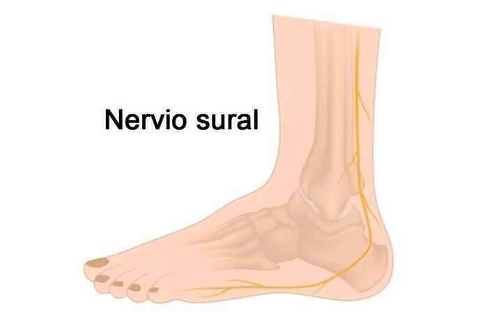 nervio sural