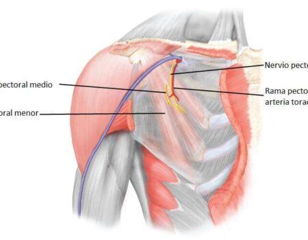 Nervio pectoral lateral