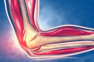 Áreas anatómicas de la extremidad superior