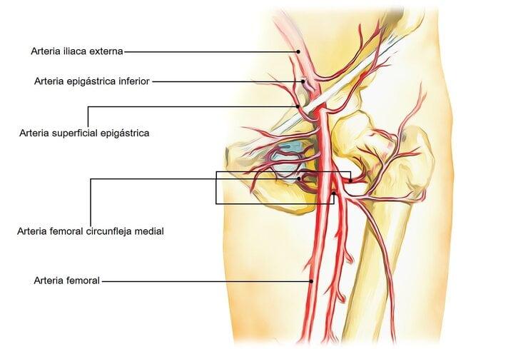 Arteria epigástrica inferior