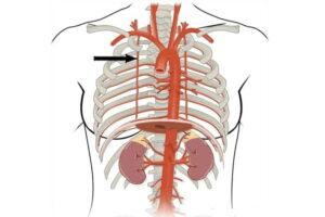 Arteria torácica interna