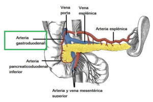 Arteria gastroduodenal